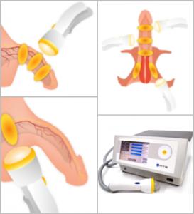 Prinzip der fokussierten Stoßwellentherapie am Penis